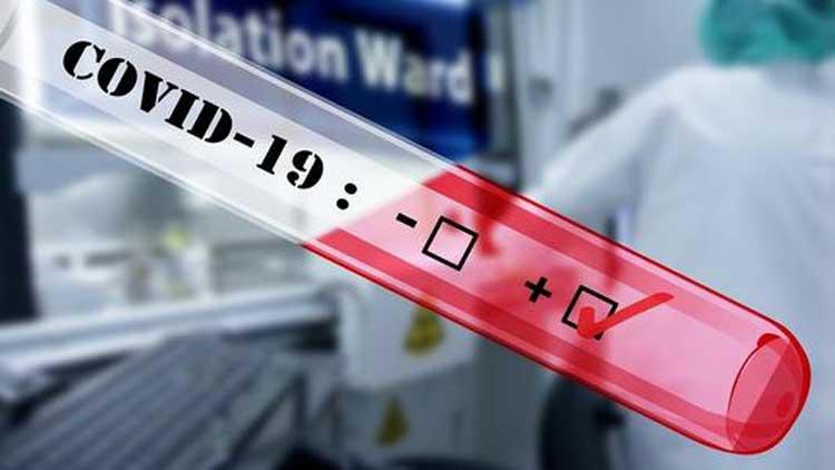 Covid 19 Antigen Test Clinical Trial