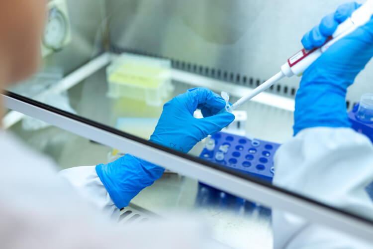 Enzyme-Linked-ImmunoSorbant-Assay