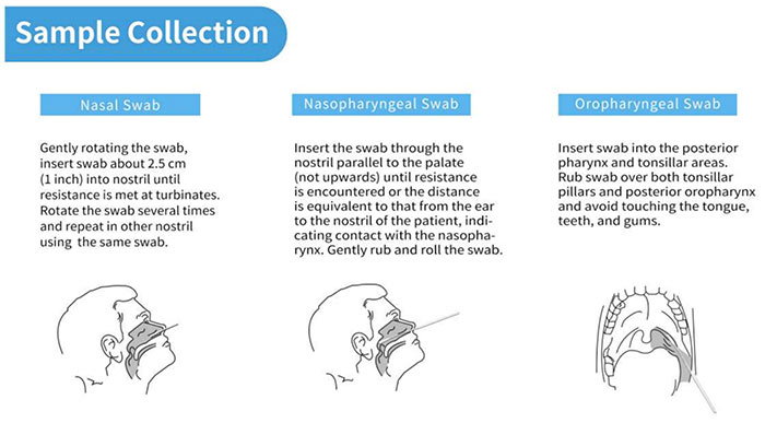 lungene-swab-test